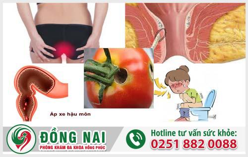 5 Nguyên nhân chính gây bệnh mạch lươn mà bạn nên biết