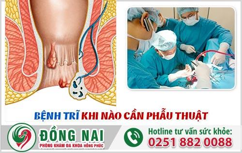 Bệnh trĩ khi nào cần phẫu thuật?