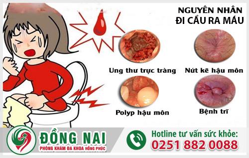 Khá nhiều bệnh lý dẫn đến hiện tượng đi cầu ra máu