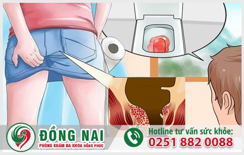 Đi cầu ra máu dấu hiệu cảnh báo nhiều bệnh lý nguy hiểm