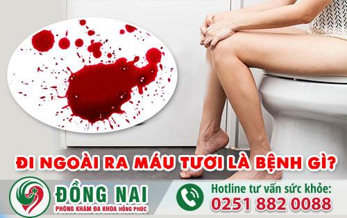 Đi ngoài ra máu tươi là bệnh gì, có nguy hiểm không? Đừng vội kết luận hãy đọc thông tin sau sẽ rõ